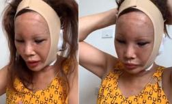 Tình hình sức khỏe của 'Cô dâu 62 tuổi' Thu Sao sau khi phải nhập viện cấp cứu lúc nửa đêm