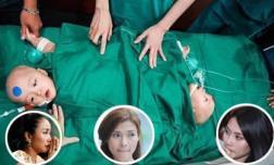 Phẫu thuật tách dính cặp song sinh tại Việt Nam: Loạt sao Việt cầu nguyện và kêu gọi ủng hộ cho gia đình 2 bé