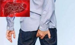 Không phân biệt nam nữ, 'ngứa' bộ phận này trên cơ thể có thể là dấu hiệu của ung thư gan