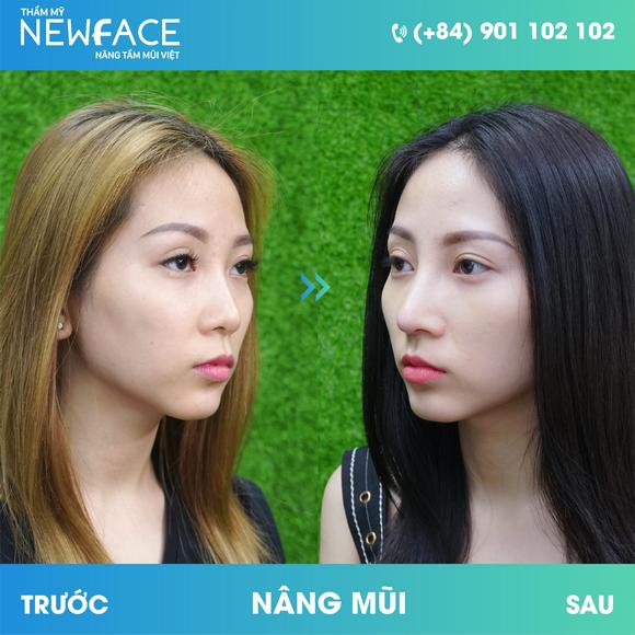 Viện thẩm mỹ Newface, Phẫu thuật thẩm mỹ, Nâng mũi