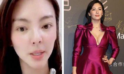 'Song Hye Kyo Trung Quốc' bị nghi ngờ phẫu thuật thẩm mỹ khi lộ chiếc mũi biến dạng