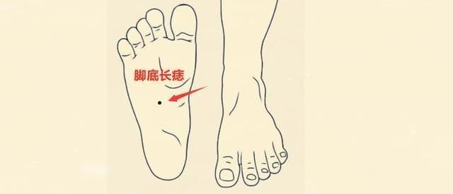 3-vi-tri-not-ruoi-giau-sang-ngoisaovn-w640-h275 2
