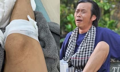 Danh hài Hoài Linh bị 'tai nạn' chảy máu chân, sa sẩm mặt mũi nhưng đối tượng 'gây án' lại cực bất ngờ