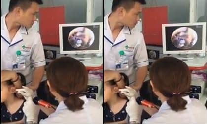 Bé gái bị ve chó làm tổ trong tai, hội yêu 'boss' xem ngay để rút kinh nghiệm