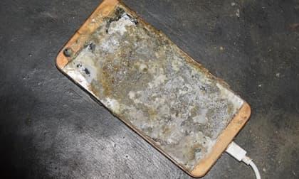 Nổ điện thoại khi vừa dùng vừa sạc pin, thanh niên bị cháy bỏng toàn thân