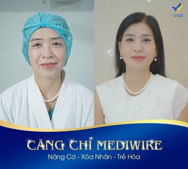 cong-nghe-cang-da-108-3-ngoisaovn-w600-h541 3