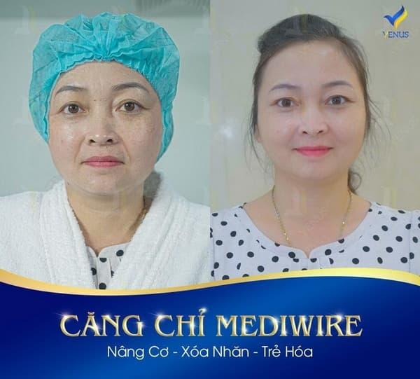 cong-nghe-cang-da-108-4-ngoisaovn-w600-h541 2