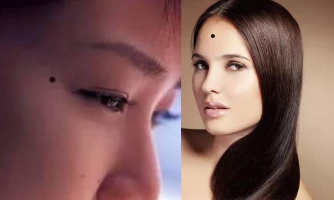 Ba nốt ruồi liên quan đến hôn nhân của phụ nữ, người có nốt ruồi này cần chú ý