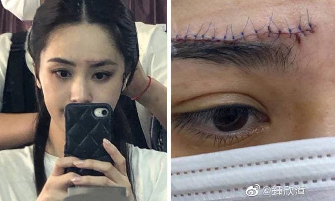 Hình ảnh vết thương kinh hoàng ở vùng trán của Chung Hân Đồng được công bố