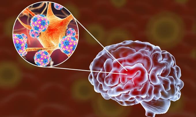 Viêm màng não là gì? 4 nguyên nhân chính này cần phải cảnh giác, 3 dấu hiệu chính để phát hiện và điều trị sớm