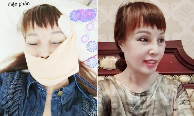 Nhan sắc mới nhất của 'cô dâu 62 tuổi' Thu Sao sau ca phẫu thuật khắc phục biến chứng lệch mặt