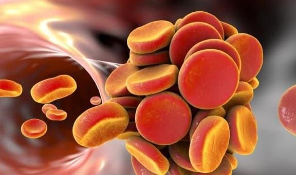 Nó được gọi là 'chất làm sạch mạch máu'. Nếu không muốn gặp rắc rối với cục máu đông, bạn nên bổ sung