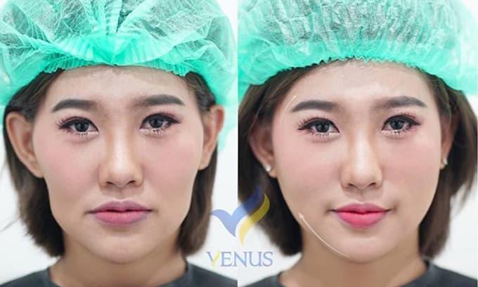 Tái sinh đa tầng, Phòng khám chuyên khoa Phẫu thuật tạo hình thẩm mỹ Venus, Venus by Asian