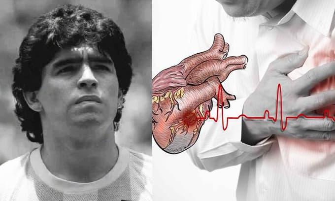 Maradona đã qua đời từ một nguyên nhân phổ biến gây ngừng tim, hy vọng bạn không thuộc nhóm nguy cơ cao này