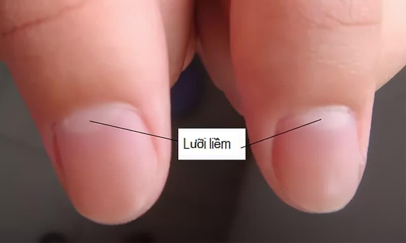 Tại sao một số người có những đường lưỡi liềm trắng trên móng tay, nhưng người khác thì không? Đây là lời giải thích khoa học