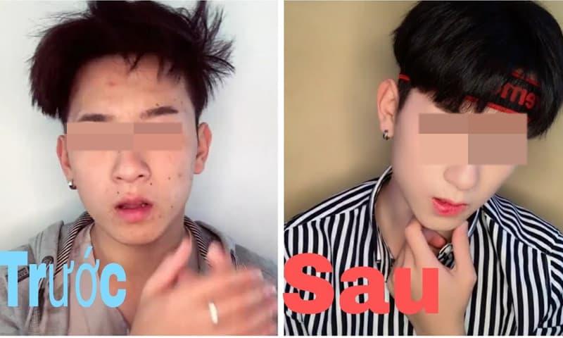 Tranh cãi chuyện chàng trai bị cruhs từ chối vì đi phun môi, điêu khắc lông mày và đánh phấn