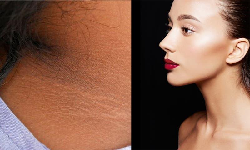 Muốn có vùng da cổ không bị đen lại mịn màng và sạch mụn, đừng bỏ qua 6 bí quyết này