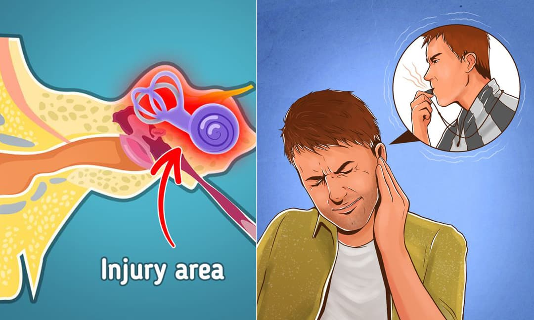Lý do tại sao thỉnh thoảng chúng ta lại thấy 'ù ù' trong tai và cách khắc phục