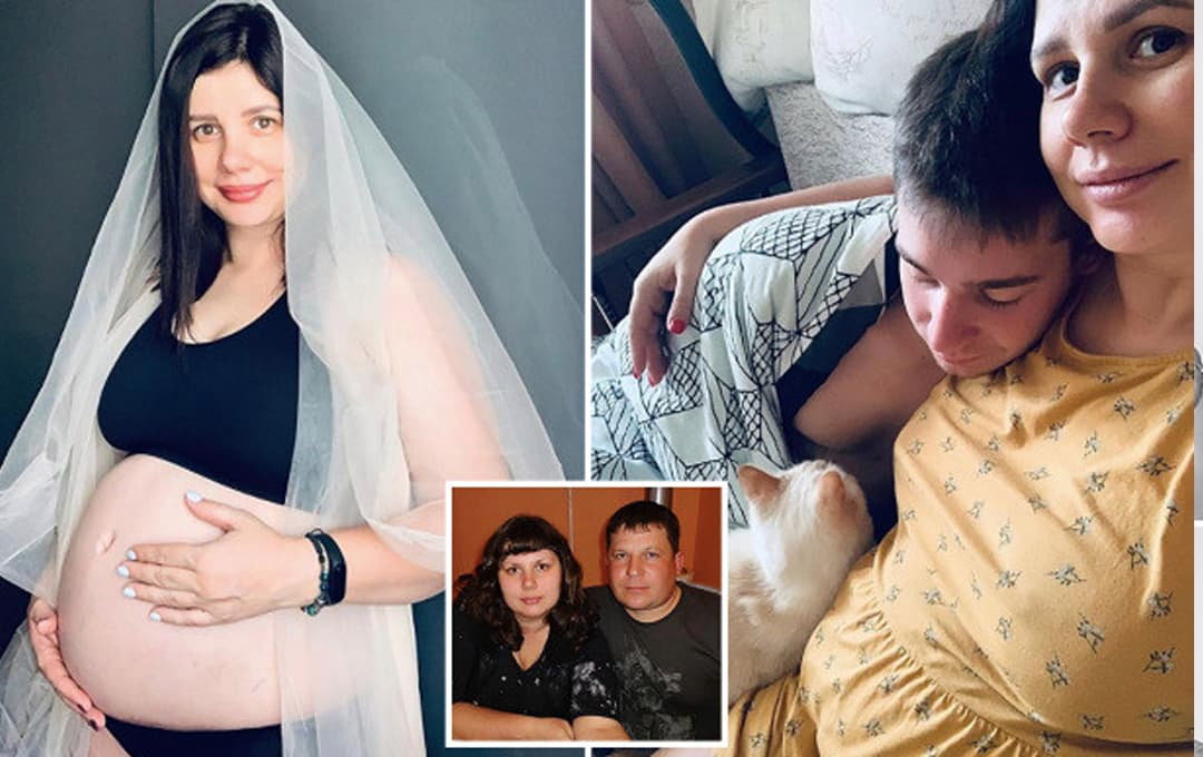 Một phụ nữ Nga 35 tuổi kết hôn với con riêng 21 tuổi và sắp sinh em bé; cô phẫu thuật thẩm mỹ cho hợp với người chồng trẻ