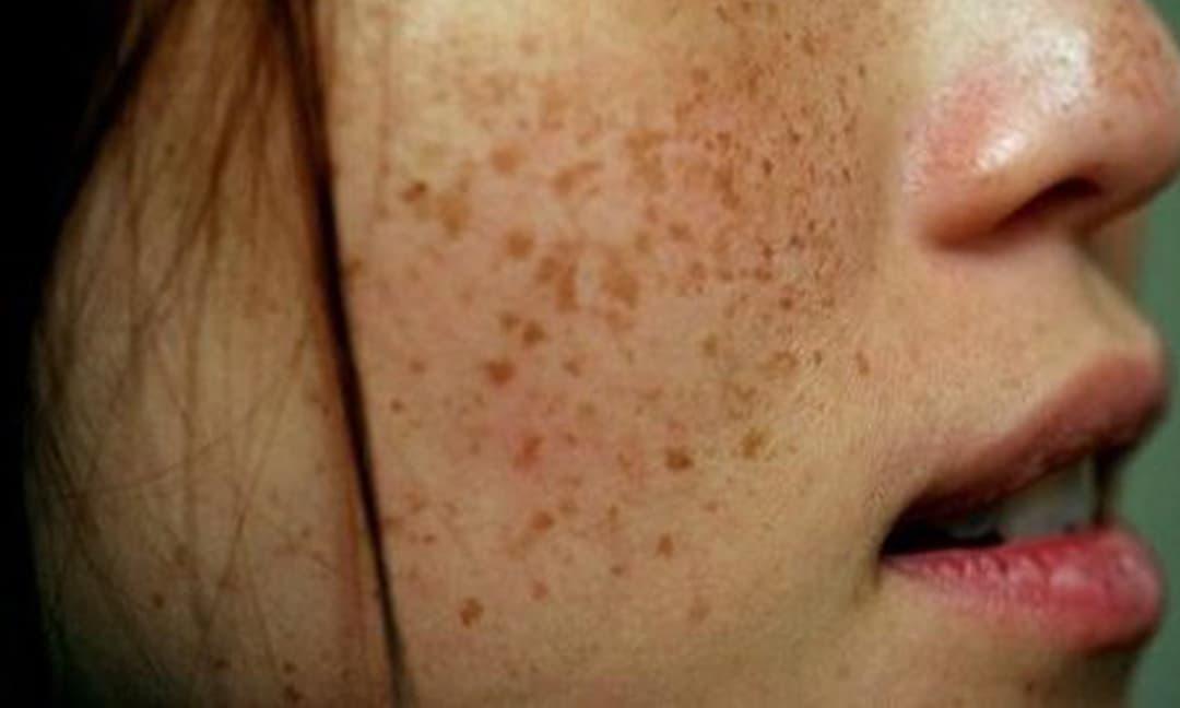 Trả giá bằng cả khuôn mặt khi trị nám da không đúng cách