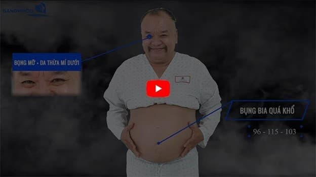 Bệnh viện Gangwhoo, công nghệ giản béo, Diễn viên Tam Thanh