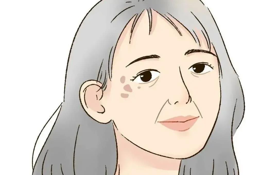 5 nguyên nhân chính gây ra nám, tàn nhàng và các đốm trên mặt thường gặp