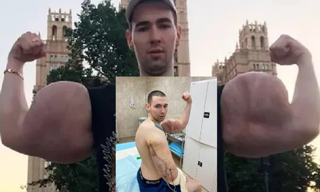 Võ sĩ có bắp tay khổng lồ nổi tiếng suýt chết vì bơm 'cơ' giả
