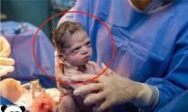 Trẻ sơ sinh mới chào đời với 'khuôn mặt tức giận' và 'lườm' bác sĩ: 'Ai bảo bạn đưa tôi ra ngoài'?