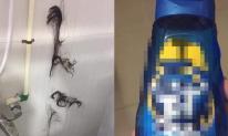 Chính thất trả thù cao tay khiến đầu của tiểu tam rụng hết tóc mà không cần đánh ghen