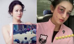 Sao Việt 20/1/2021: Nhật Kim Anh bị đụng xe; Á hậu Huyền My đăng ảnh với gương mặt bầm tím khiến fan lo lắng