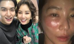 'Mẹ Lee Min Ho' Kim Sung Ryung mặt sưng vù do sai lầm đơn giản khi đắp mặt nạ