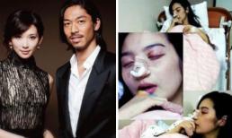 Chân dài hàng đầu xứ Đài - Lâm Chí Linh bị đánh bầm dập đến mức phải nhập viện sau 4 tháng kết hôn?