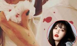 'Nữ hoàng gợi cảm' HyunA bị chảy máu mũi, fans lo lắng sức khỏe đi xuống