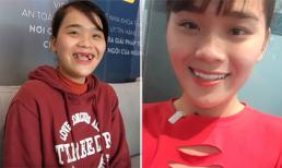 Ngân Thảo khoe bộ răng sứ mới, không còn là 'thánh sún' như trước