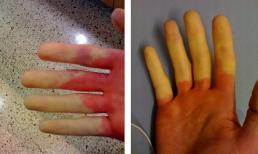 Nếu tay chân bị tê và đổi màu trong thời tiết lạnh có thể là dấu hiệu của bệnh cực nguy hiểm