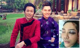 Tiết lộ tình hình sức khỏe hiện tại của con trai nuôi danh hài Hoài Linh: đã tỉnh tại, cục máu bầm tạm ngưng phát triển