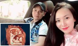 Khắc Việt tiết lộ vợ mang thai đôi 1 trai, 1 gái