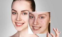 Mụn đầu đen, lỗ chân lông to, chỉ cần thực hiện ba bước đơn giản để có làn da láng mịn