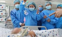 Phẫu thuật tách rời hai bé song sinh dính liền: Trúc Nhi còn yếu, vẫn phải thở máy