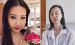 Sao nữ mắc ung thư khiến mặt biến dạng, cầu xin cộng đồng mạng giúp đỡ