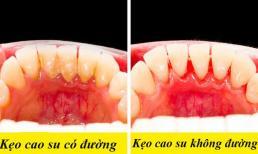 8 ảnh hưởng tích cực và tiêu cực đến cơ thể khi bạn nhai kẹo cao su thường xuyên