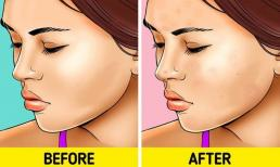 7 vấn đề sẽ xảy ra khiến làn da bị 'hủy hoại' nếu không tẩy trang trước khi ngủ