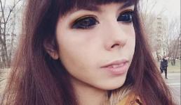 Cô gái bị mù sau khi xăm mực đen lên mắt để có vẻ ngoài giống thần tượng