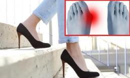 Chú ý! 30% phụ nữ mắc bệnh ở chân. Bác sĩ khuyến cáo: 'Hạn chế đi giày kiểu này?'