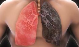 Sắp có vắc xin điều trị và ngăn ngừa ung thư phổi