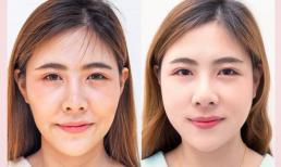 Công nghệ trẻ hoá hàng đầu Hàn Quốc đã có mặt tại Việt Nam