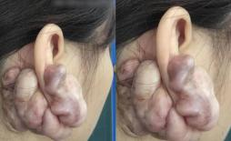 Hình ảnh sẹo đùn kín tai do nâng mũi bằng sụn tai gây sốc trên MXH: Có hay không việc sửa mũi đẹp xong khiến tai bị dị dạng?