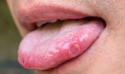 Có ung thư trong cơ thể, lưỡi sẽ 'tiên tri'? 6 hiện tượng này ở lưỡi cho thấy ung thư có thể đã đến