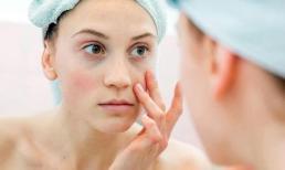 Chuyên gia da liễu lưu ý cách chăm sóc da sau khi trị nám bằng Laser