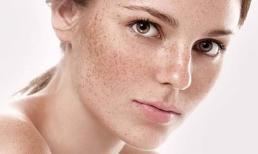 Nhận diện 3 cấp độ nám da và cách điều trị triệt để